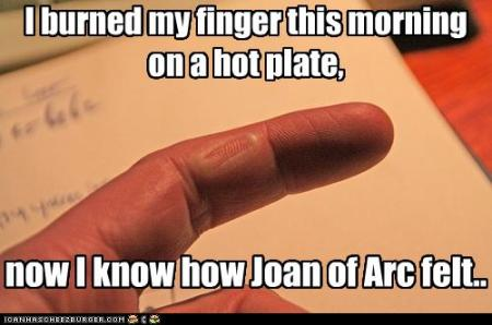 burnt-my-finger-on-a-hot-plate
